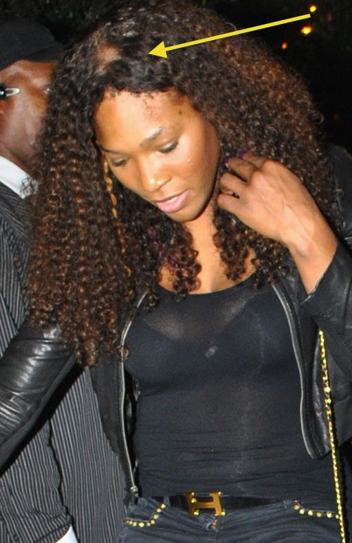 Bad Weave Or A Bald Spot Introducing Serena Williams Hair Day