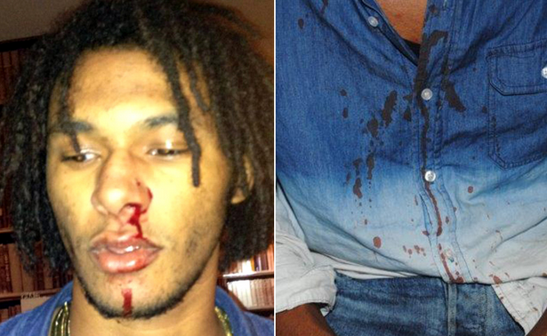 Ouch! Court Releases Bloody Chris Brown Bodyguard Assault Photos