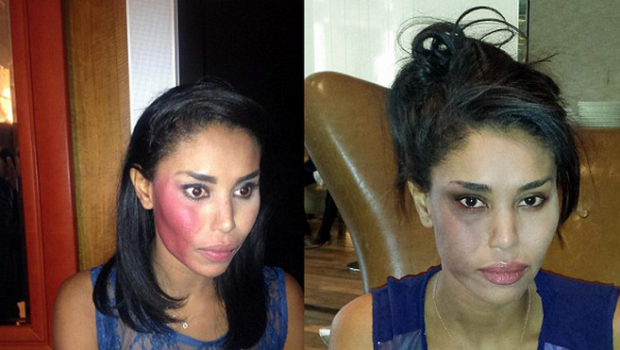 Man Arrested After Allegedly Attacking V. Stiviano + Alarming Photos Released