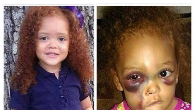 [Justice for AvaLynn] Elementary Student Badly Injured On School Playground