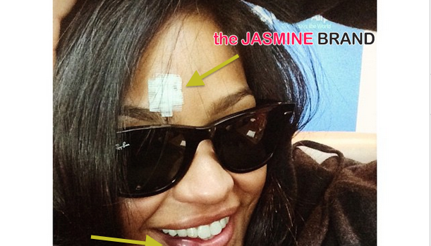 Bruised, But Smiling! Cassie Involved in ATV Accident [Photos]