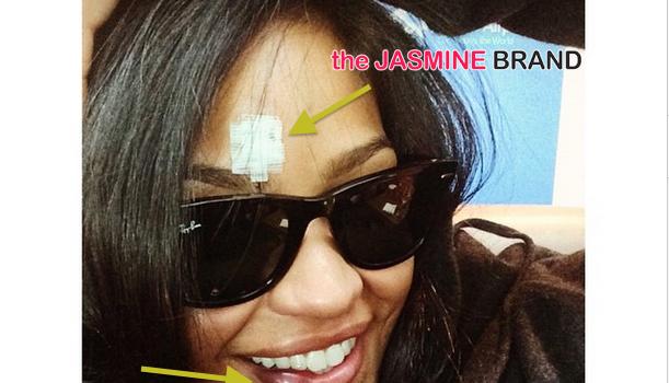 Bruised, But Smiling! Cassie Involved in ATV Accident [Photos]