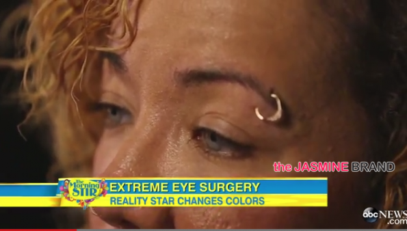 Tiny Defends Controversial Eye-Coloring Surgery on GMA-the jasmine brand