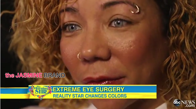 Tiny Defends Controversial Eye Coloring Surgery On Good ...