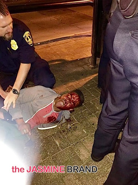 Black University of VA Student, Martese Johnson, Receives Bloody Arrest by Police-the jasmine brand