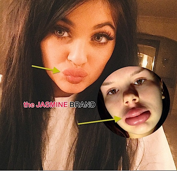 #KylieJennerLipChallenge Invades Social Media + See the Alarming Photos!