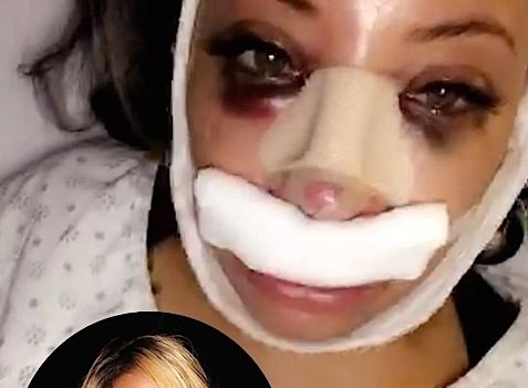 Ouch! Reality Star Hazel E Gets A Nose Job [VIDEO]