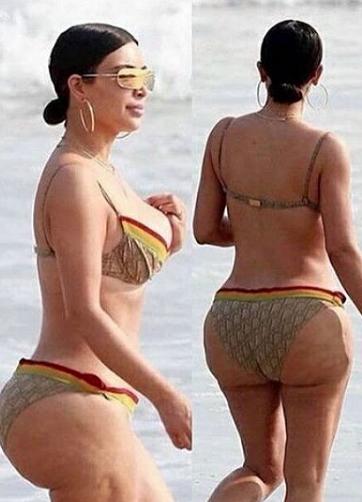Kim Kardashian 'Diaper Butt' Trashed By Plastic Surgeon