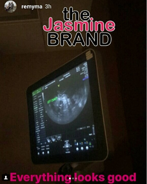 Ray J Reveals Sonogram + Remy Ma Spotted at Fertility Doctor