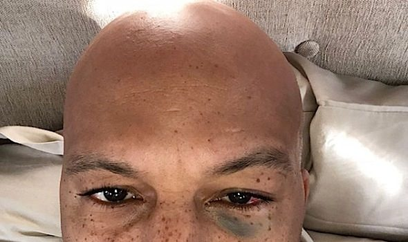 Amber Rose Fake Masturbates For the 'Gram, Common Gets A Black Eye + Spice Girls Reunites