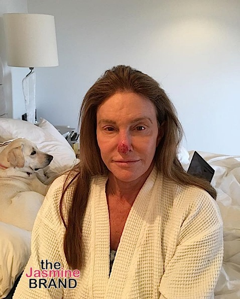 Caitlyn Jenner Posts Graphic Photo - I had skin cancer cut from my nose!