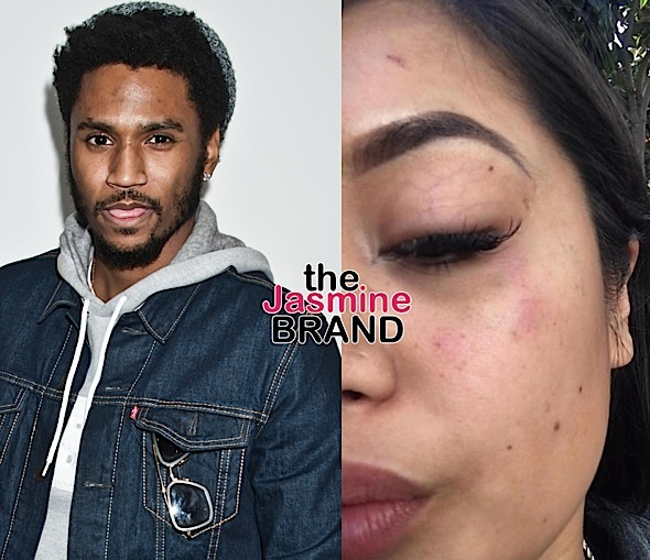 Trey Songz Denies Attacking Woman 'I Am Being Lied On'