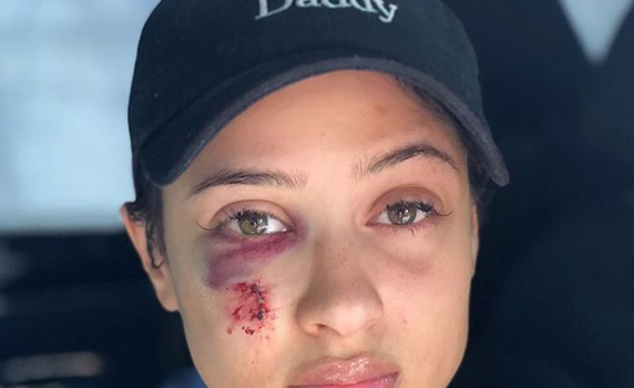 Tori Brixx Shows Of Her Bloodied Face After Being Pistol Whipped w/ BF Rich The Kid, Argues w/ Rapper's Estranged Wife