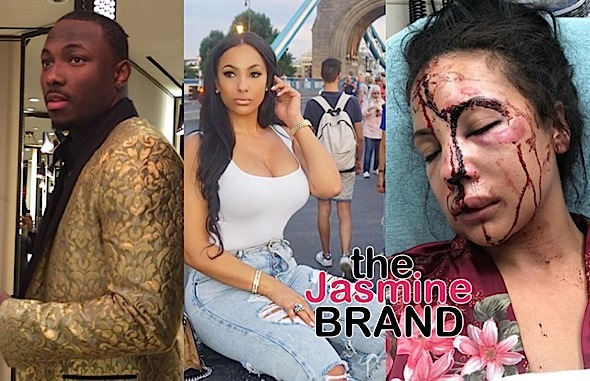 NFL'er LeSean McCoy Accused Of Beating Girlfriend Delicia Cordon [PICS]
