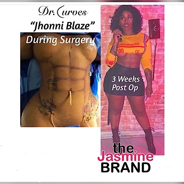 Reality Star Jhonni Blaze Opens Up About Getting Plastic Surgery Abs