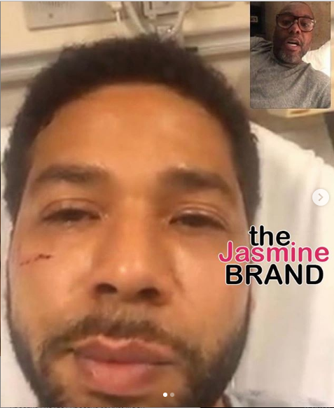 1st Look: Jussie Smollett's Bruised Face Revealed After Brutal Attack [Photo]