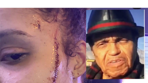 Joe Jackson's Granddaughter Was Stabbed 7 Times In Alleged Hate Crime