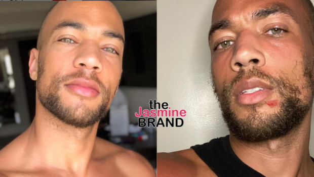 'Insecure' Actor Kendrick Sampson Shows His Bruises After Being Shot w/ Rubber Bullets During Protests in L.A.