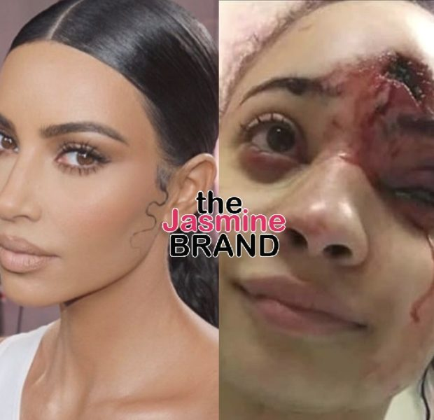 Kim Kardashian Offers To Pay Medical Bills For Minneapolis Protester Disfigured By Police's Rubber Bullets