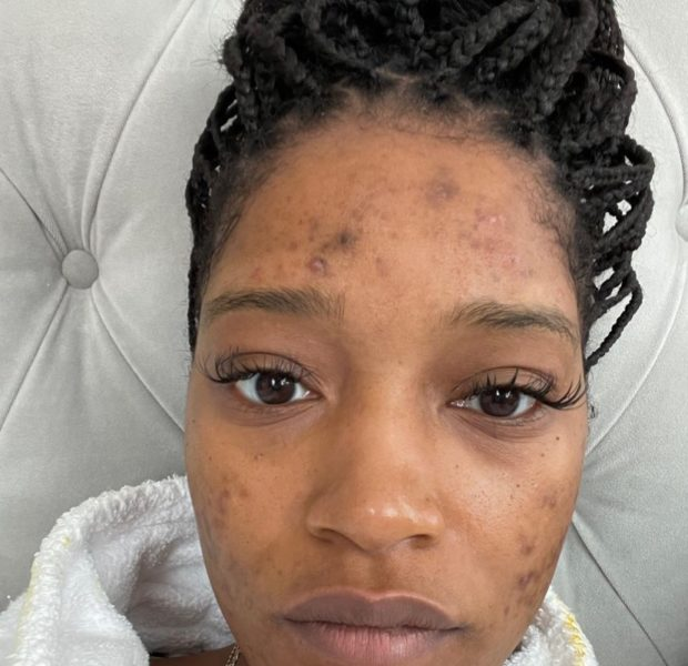 Keke Palmer Opens Up About Her Struggles With Acne & PCOS [Photos]
