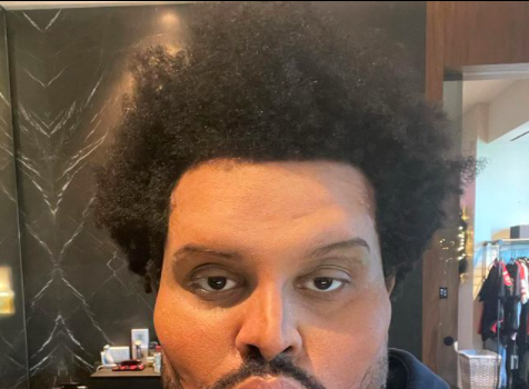The Weeknd's Dramatic Plastic Surgery-Enhanced Face For 'Save Your Tears' Music Video Leaves Fans Stunned