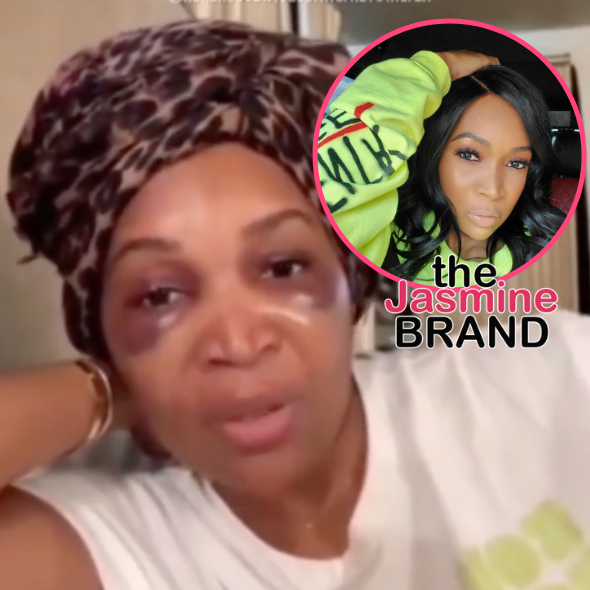 Marlo Hampton Doesn't Regret Hair Transplant Procedure Despite Suffering Facial Injury: My Doctor Said My Edges Are Gonna Grow In So Full!