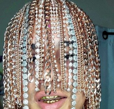 Rapper & Reggaeton Star Dan Sur Has Gold Chains Surgically Implanted Into His Scalp: This Is My Hair